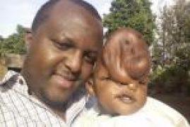 Murang'a NGO Boss Accounts Frozen over Sh2.8 Million Baby's Surgery Cash