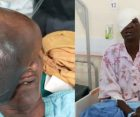 Kenyan Doctors Remove 3kg Growth on Elderly Woman's Face, Ending 21 Years of Agony