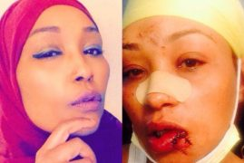 "Kenyan Woman Brutally Attacked at a Minnesota Restaurant for Not Speaking ""American"""